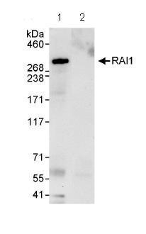 Immunoprecipitation - RAI1 antibody (ab86599)