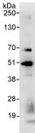 Immunoprecipitation - SH3 containing Grb 2 like 1 protein antibody (ab86605)