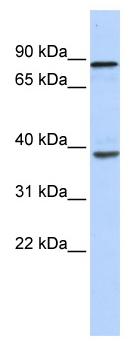 Western blot - DHX35 antibody (ab86677)