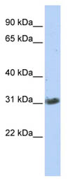 Western blot - ZFAND3 antibody (ab86678)