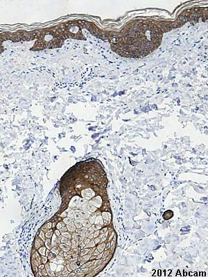 Immunohistochemistry (Formalin/PFA-fixed paraffin-embedded sections) - Anti-pan Cytokeratin antibody [AE1/AE3 + 5D3] (ab86734)