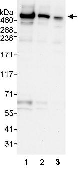 Western blot - UBR4 antibody (ab86738)