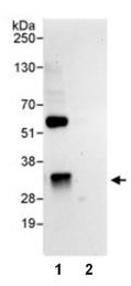 Immunoprecipitation - ZNRF2 antibody (ab86778)