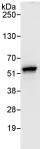 Immunoprecipitation - POLR3D antibody (ab86786)