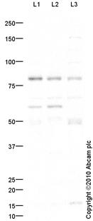Western blot - PKC delta antibody (ab86800)
