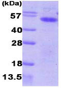 SDS-PAGE - Aurora A protein (His tag) (ab86846)