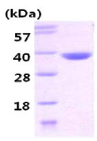 SDS-PAGE - CBR3 protein (His tag) (ab86848)