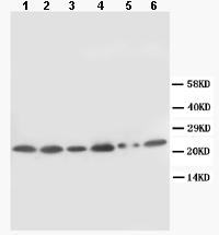 Western blot - SCN1B antibody (ab86931)