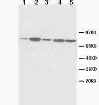 Western blot - SDHA antibody (ab86932)