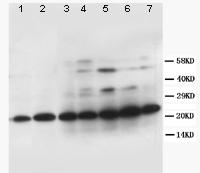 Western blot - TFPI2 antibody (ab86933)