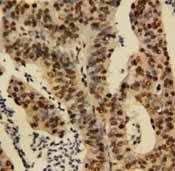 Immunohistochemistry (Formalin/PFA-fixed paraffin-embedded sections) - TNFAIP1 antibody (ab86934)