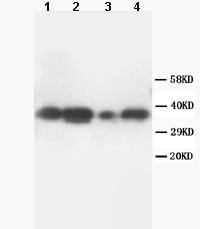 Western blot - TNFAIP1 antibody (ab86934)