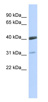 Western blot - VSX1 antibody (ab86962)
