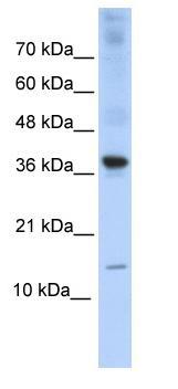 Western blot - BATF antibody (ab86965)