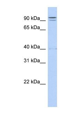 Western blot - TTC14 antibody (ab86970)