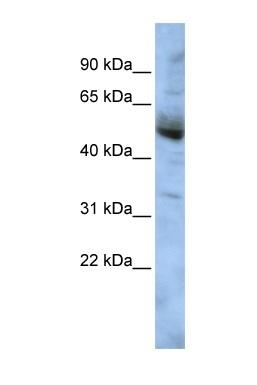 Western blot - COPS4 antibody (ab86973)