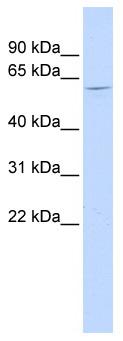 Western blot - NT5C1B antibody (ab86976)