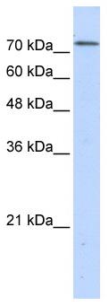 Western blot - BOP1 antibody (ab86982)