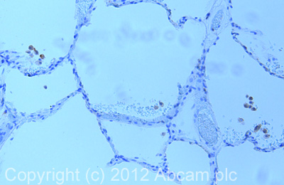 Immunohistochemistry (Formalin/PFA-fixed paraffin-embedded sections) - Anti-TXNIP antibody (ab86983)