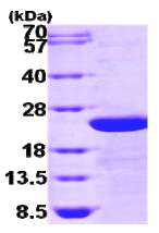 SDS-PAGE - TGFBI protein (Human) (ab86989)