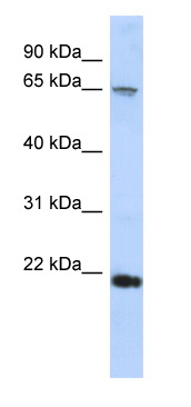 Western blot - RAD54B antibody (ab87003)
