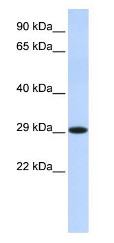 Western blot - HSD17B14 antibody (ab87011)