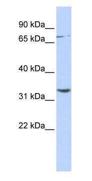 Western blot - Anti-DPY19L1 antibody (ab87025)