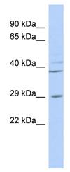 Western blot - BPNT1 antibody (ab87037)