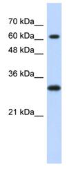 Western blot - ERF antibody (ab87039)