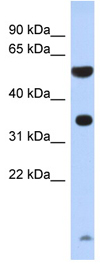 Western blot - ESSPL antibody (ab87040)