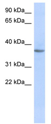 Western blot - Anti-Olfactory receptor 10X1 antibody (ab87041)