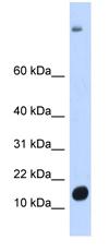 Western blot - C6orf201 antibody (ab87044)