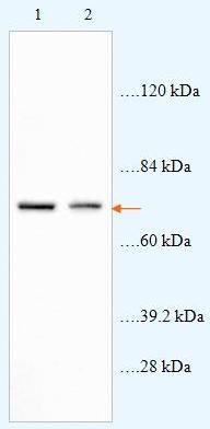 Western blot - ABCD4 antibody (ab87046)