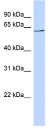 Western blot - Anti-BTNL9 antibody (ab87049)