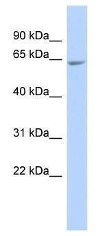 Western blot - GALNTL4 antibody (ab87051)