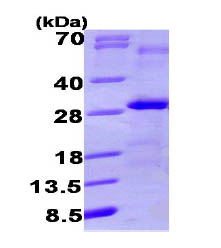 SDS-PAGE - VEGFB protein (His tag) (ab87052)