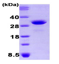 SDS-PAGE - OSTF1 protein (His tag) (ab87058)