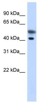 Western blot - Tropomodulin 2 antibody (ab87061)