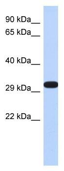 Western blot - DDAH2 antibody (ab87064)