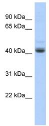 Western blot - PKNOX1.1 antibody (ab87068)