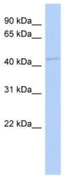 Western blot - FAM98B antibody (ab87069)