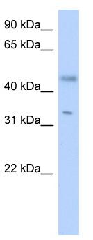 Western blot - RDHE2  antibody (ab87071)