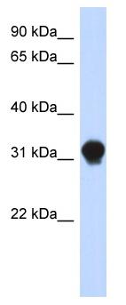Western blot - DNALI1 antibody (ab87075)
