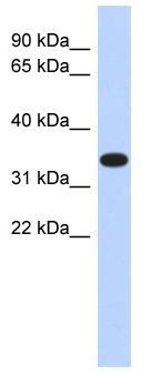 Western blot - ACTRT1 antibody (ab87076)