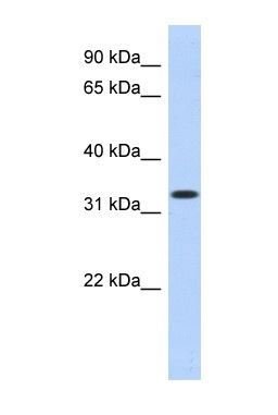 Western blot - MPPED2 antibody (ab87077)