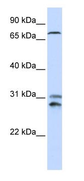 Western blot - TLK2  antibody (ab87086)