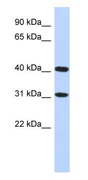 Western blot - FAM46D antibody (ab87087)