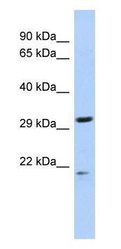 Western blot - C14ORF80 antibody (ab87089)