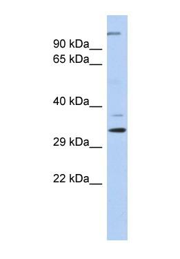 Western blot - ARPC2 antibody (ab87098)