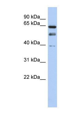 Western blot - KAT7 / Hbo1 / MYST2 antibody (ab87100)